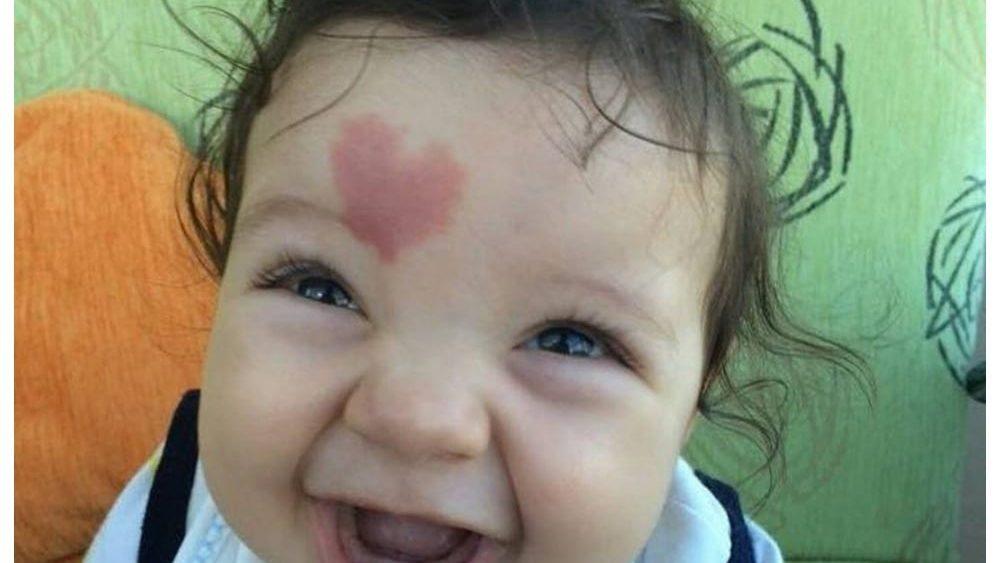 """Cinar, il """"bambino dell'amore"""" nato con un cuore sulla fronte"""